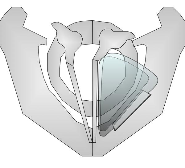 Grafik: Thyreoplastik