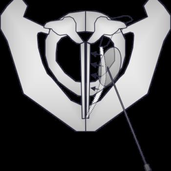 Закрытие Glottis (в случае пареза слева) после увеличения